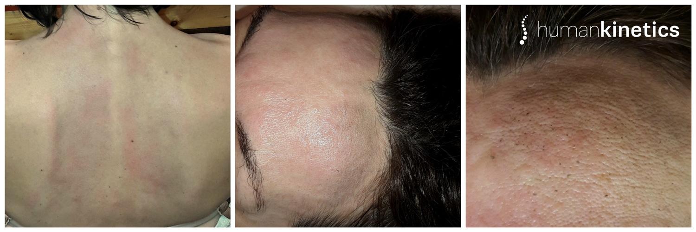 Φαινόμενα Αποτοξίνωσης σε θεραπεία πόνου στην πλάτη & σε θεραπεία προσώπου- HUMAN KINETICS